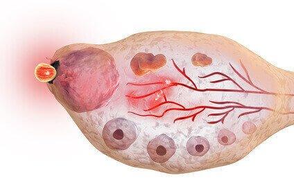 Mittelschmerz Eisprung der Eizelle aus Eibläschen