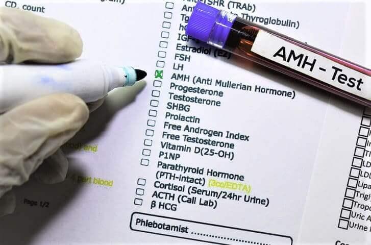 AMH Wert Anti Müller Hormon Werte Test